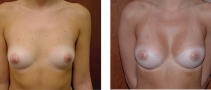 Dr. Erwin Bulan Breast Aug Before and After