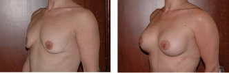 Dr. Erwin Bulan Breast Lift Before and After
