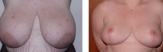 Dr. Erwin Bulan Breast Reduction Before and After