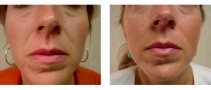 Dr. Erwin Bulan Juvederm Before and After