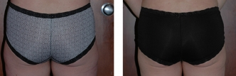 Dr. Erwin Bulan Liposuction Before and After
