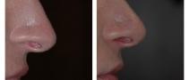 patient-nose_surgery-04