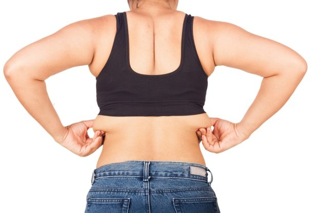 Liposuction in Northern NJ for the bra bulge
