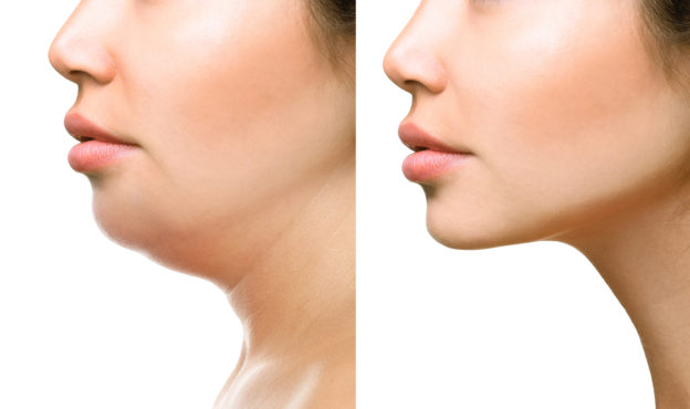 Submental Neck Lift vs. Liposuction in Essex County, New Jersey